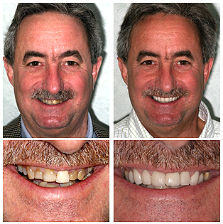 Discounted Dental Veneers: Limited Time Only