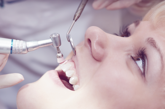 Cavity Prevention Through Teeth Cleaning | Fight Infection