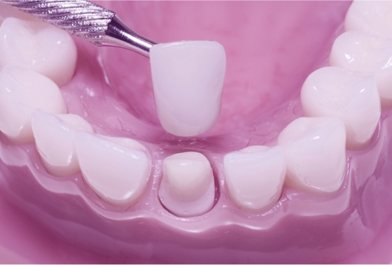 Dental Crowns, Teeth Caps | Strengthen, Shape, Restore Size