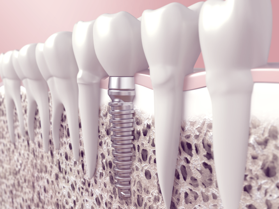 Missing Teeth: Dental Implants | Before & After