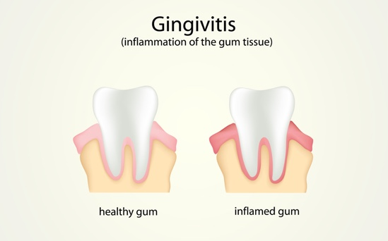 Gum Disease | Symptoms & Treatments of Gingivitis