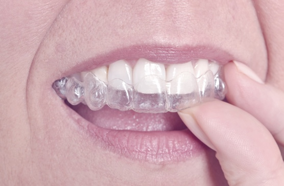 Hassle Free Teeth Straightening with Invisalign