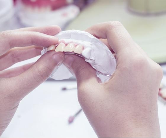 Porcelain Veneers: Brighten & Reshape Your Smile