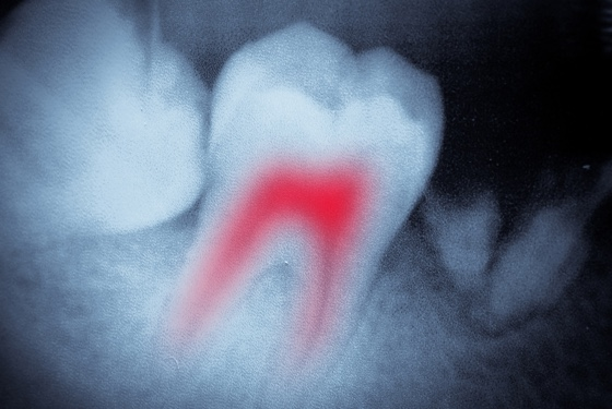 Root Canal| Endodontic Treatment: High Success Rate