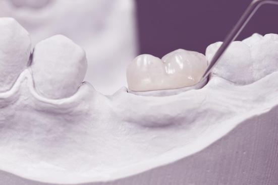 Tooth Decaying Procedures for Weak Teeth   Inlays & Onlays