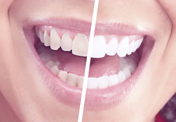 Painless Teeth Whitening Procedure | Zoom Teeth Whitening