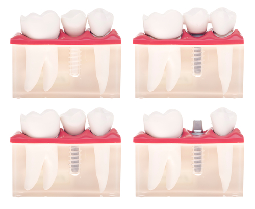 4 Types Of Teeth And Why They Are Important Greenspoint Dental