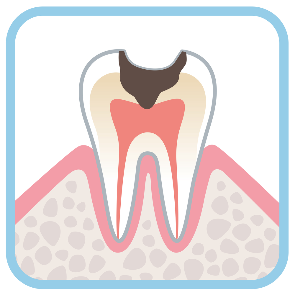 Illustration of a tooth with decay in crown of tooth, through the enamel and dentin to the pulp, sitting in gums