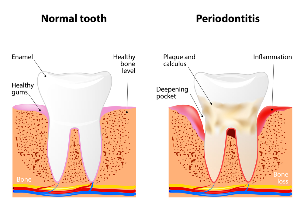 Illustration showing normal tooth versus tooth with periodontitis (gum disease); shows healthy gums versus deepening pocket, enamel versus plaque and calculus, healthy bone level versus inflammation, and bone versus bone loss