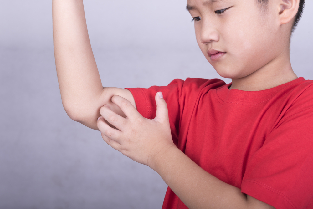 Boy in red shirt itching bug bite on arm