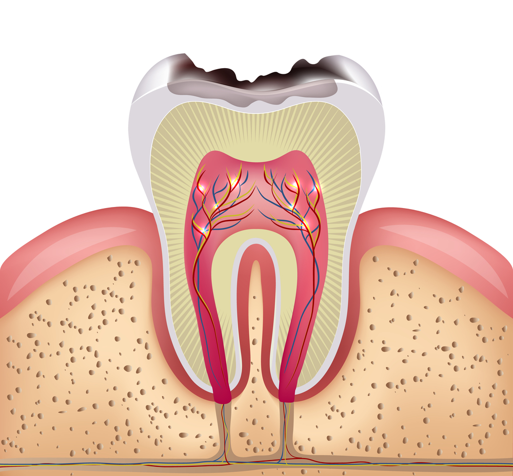 Illustration of cavity in a tooth showing all three layers of a tooth and how the tooth sits in the gums