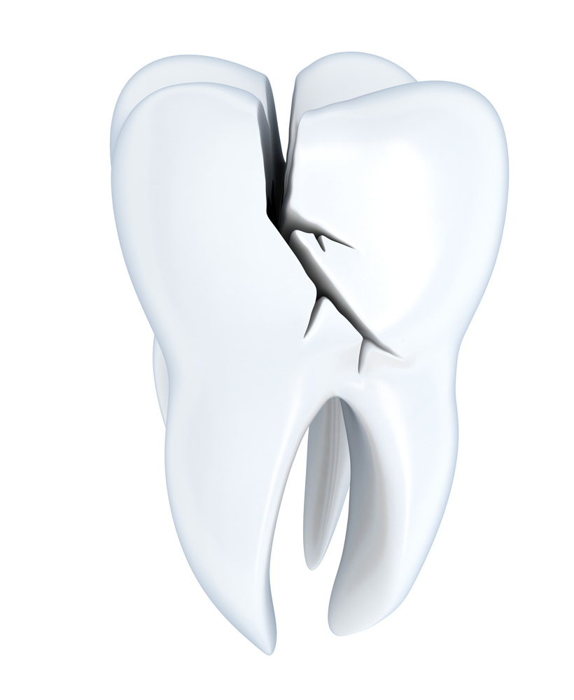 Illustration of a deep crack/fracture in tooth
