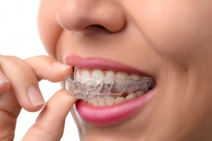 orthodontic dentist houston