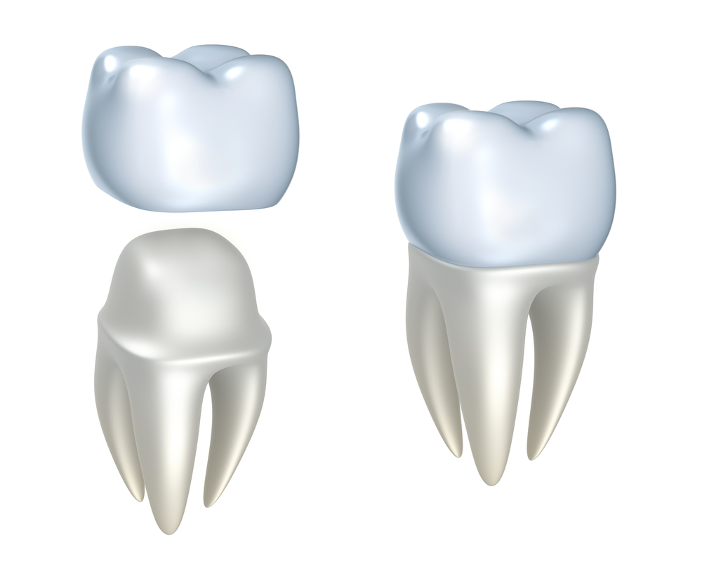 Illustration of dental crown being put on tooth and tooth with dental crown