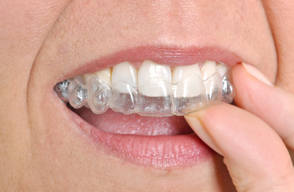 Close up of woman putting Invisalign trays on her teeth