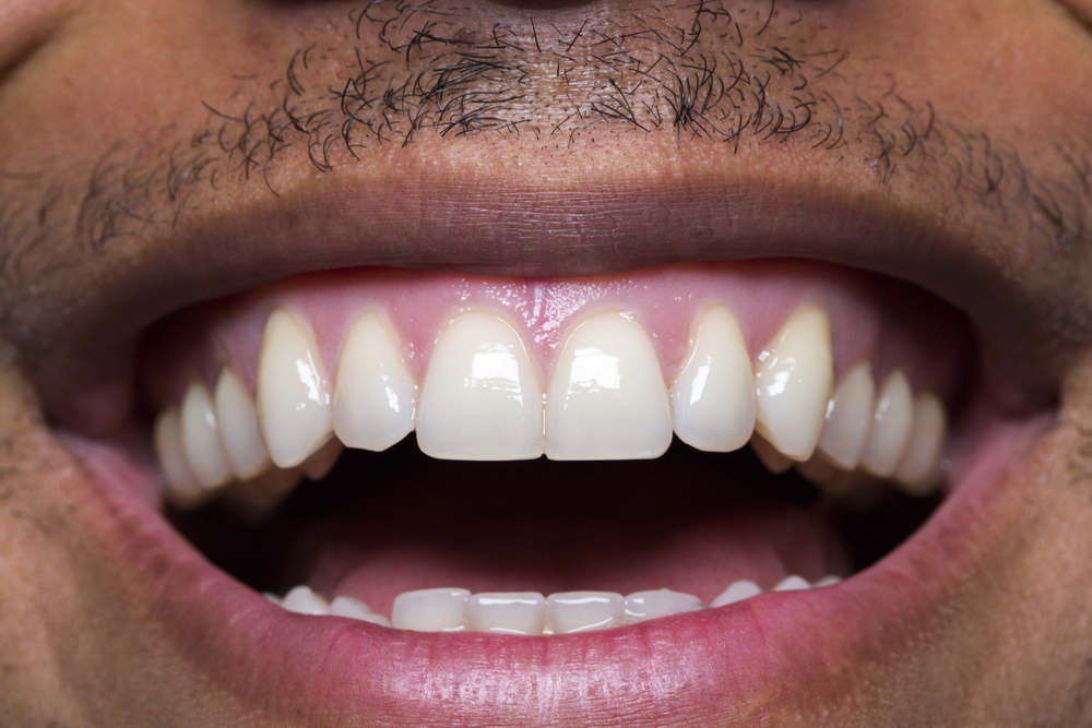 Close up of man's health, straight white teeth