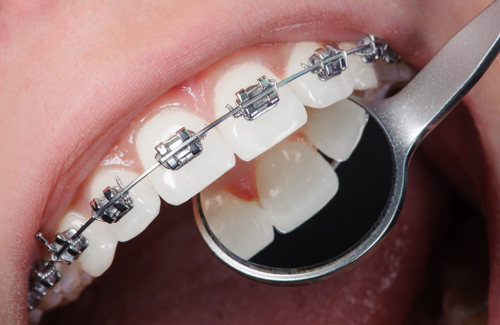 Close up of dentist looking at back of person's white teeth with metal braces on the front of the teeth