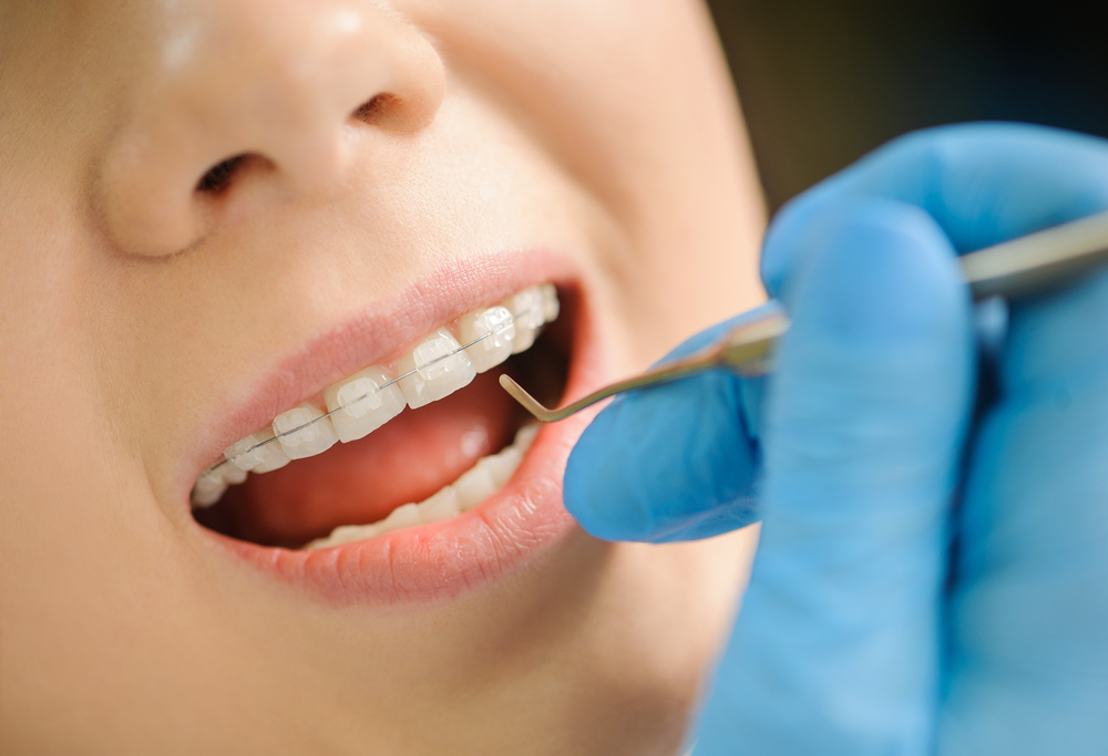 Dentist examining woman's clear ceramic braces with metal dental tool