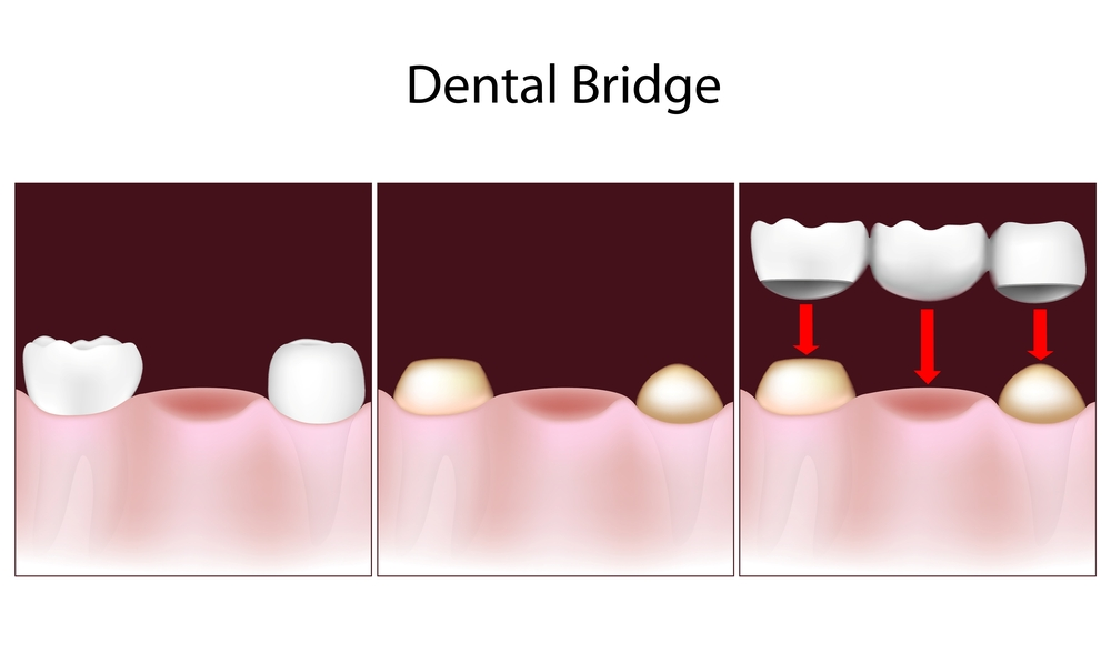 Illustration of 3 phases of receiving a dental bridge with two caps and one false tooth in between them