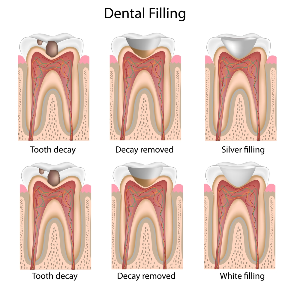 Illustration of tooth receiving a white dental filling
