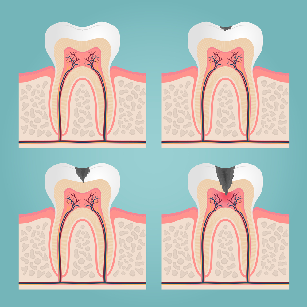 Illustration of phases of tooth decay through enamel dentin and pulp