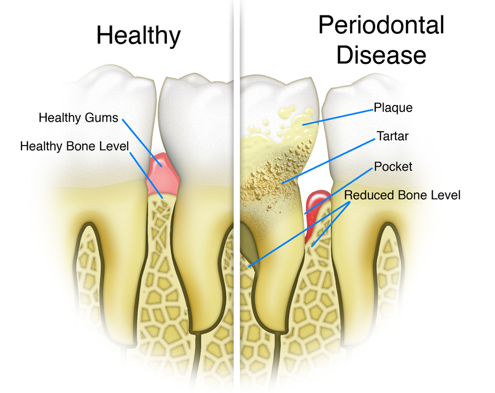 Illustration comparing a mouth with healthy teeth to a mouth with teeth with plaque and tartar and periodontal disease