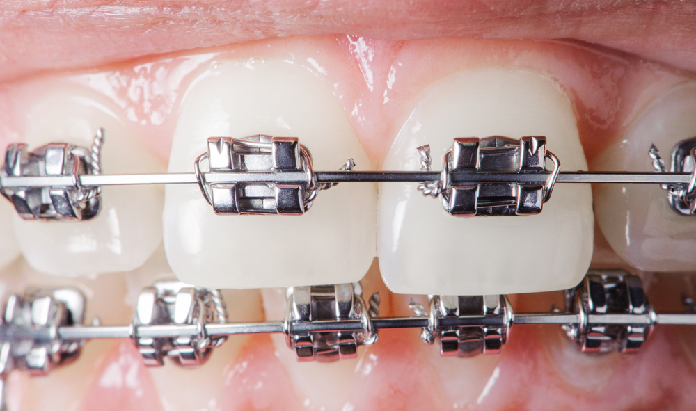 Close up of metal braces on both sets of teeth