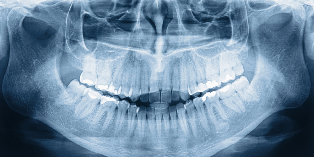 Dental X-ray of person's mouth