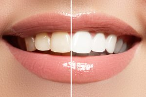 before and after of teeth whitening, one side of the smile is discolored but the other is white