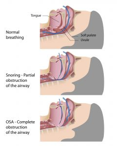 diagram of obstructive sleep apnea