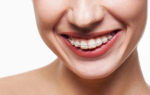 adult ceramic braces