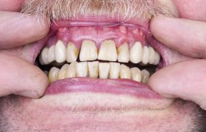 image showing unevenly discolored teeth