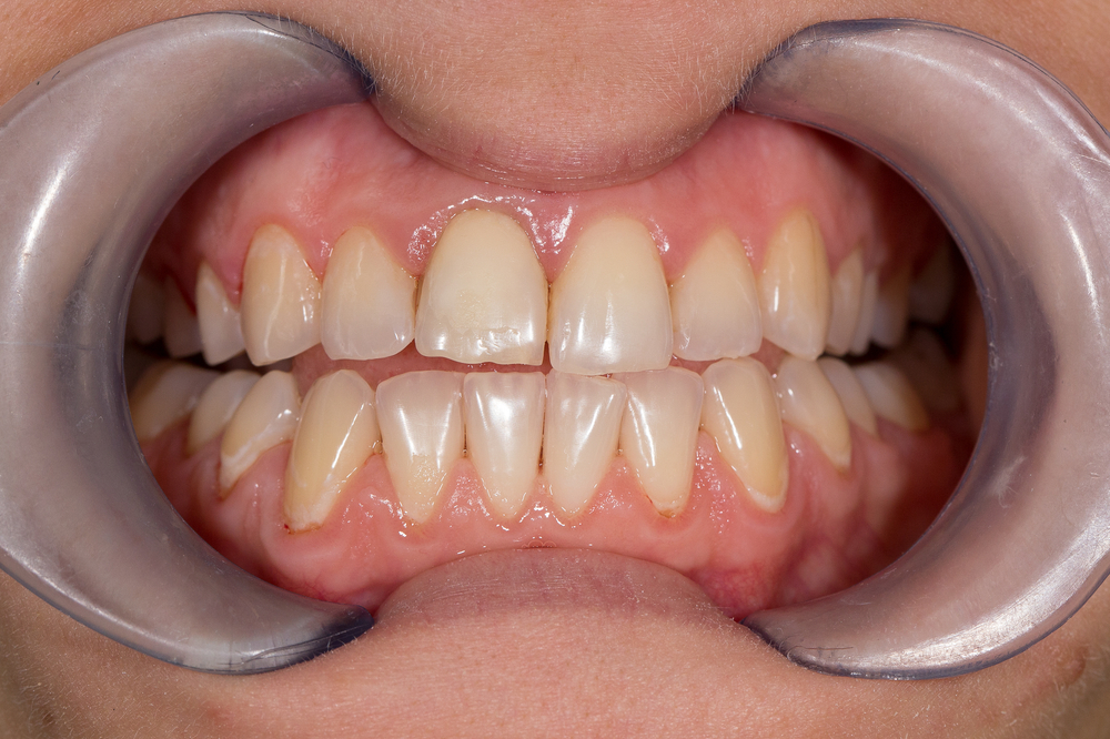 close up of teeth and gums