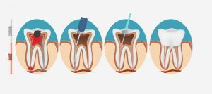 illustration of a root canal process