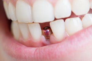 restoring front teeth- dental implant
