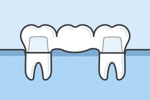 Teeth with dental bridge vector medical illustration in flat linework style- missing front tooth