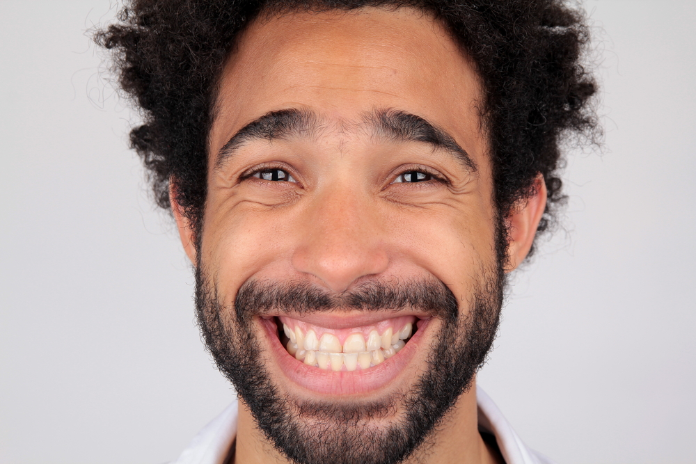 smiling man with no chipped teeth
