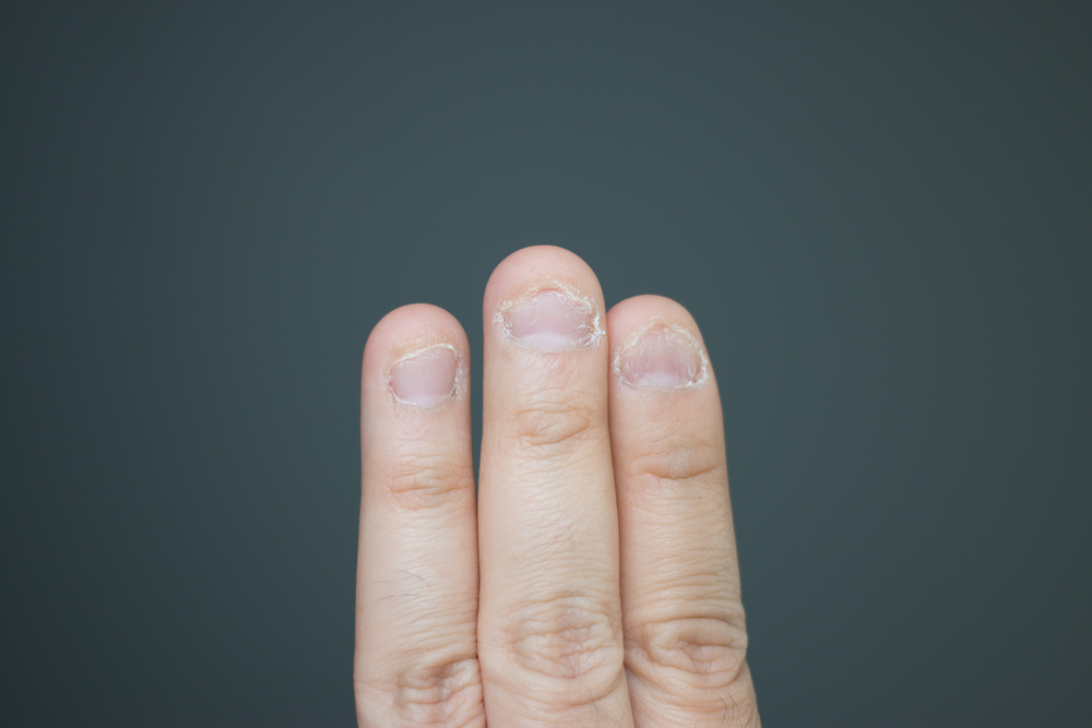 3 fingernails that have been chewed on