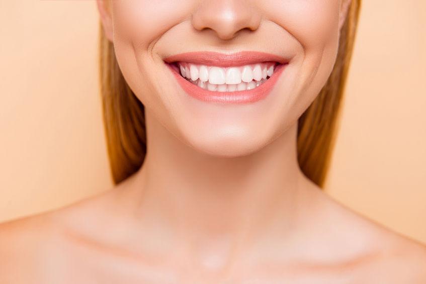 Dental Veneers Aren't Just for Celebrities - Greenspoint Dental - Houston  Dentist