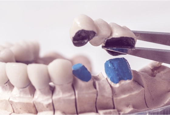 Dental Bridges Procedures | 3 types | False Teeth Restoration
