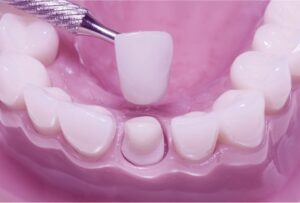 dental crowns houston