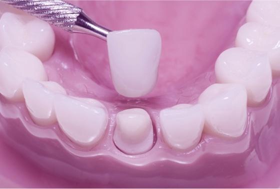 dental crowns houston