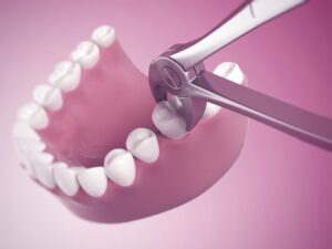 wisdom teeth removal houston tx