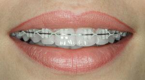 houston orthodontic specialists