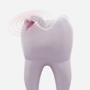 teeth cleaning houston